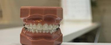 虫歯じゃないのに歯が痛いのは食いしばりが原因かも。歯医者でマウスピース(スプリント)を作ってもらおう