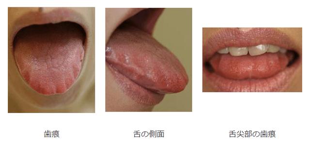 舌圧痕 歯痕